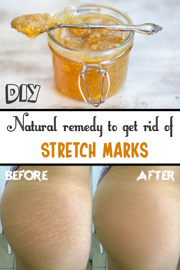 Natural remedy to get rid of stretch marks 1