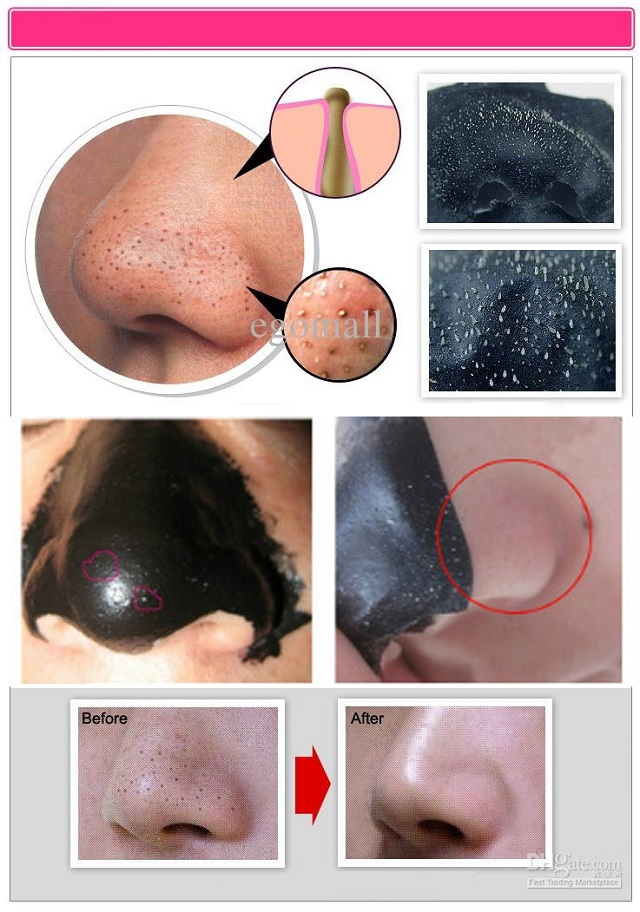 Blackheads removing mask