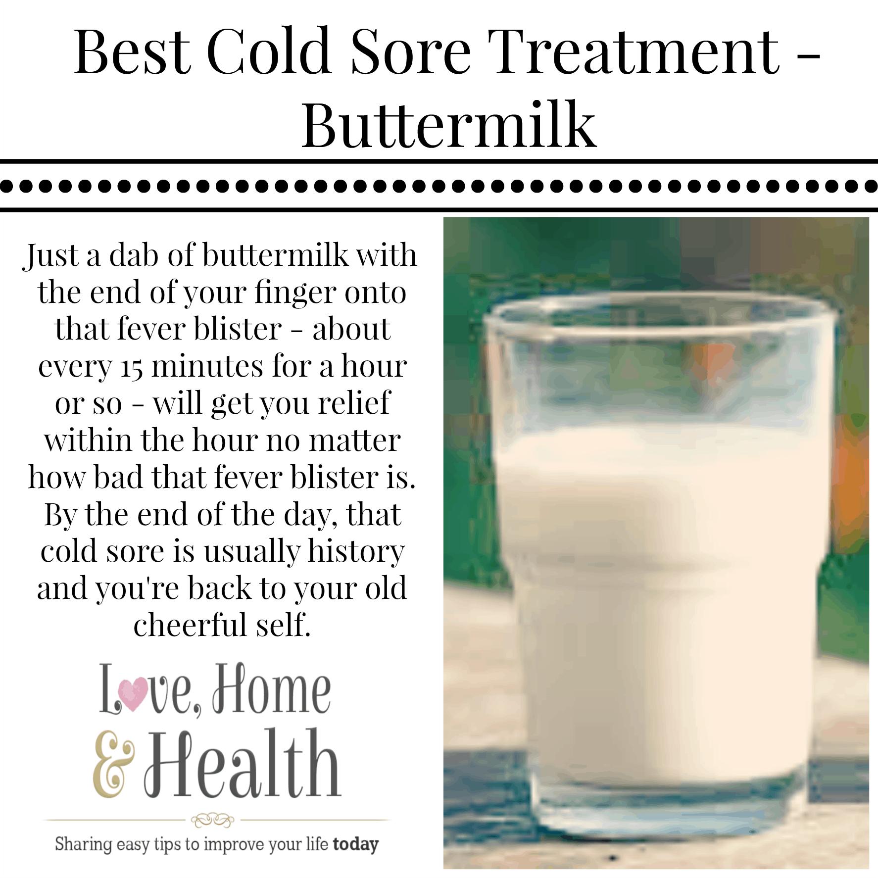 Buttermilk fever blister treatment